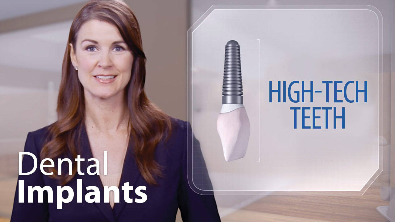 Education Video Thumbnail for Dental Implants in El Segundo & Carson at Avalon Dental