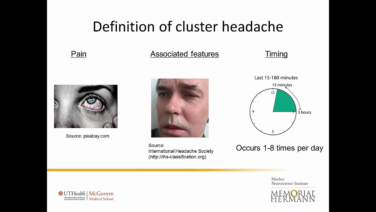 Cluster Headache Diagnosis Treatment Research Houston Tx