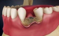 Toothloss: Graft at Time of Implant Placement