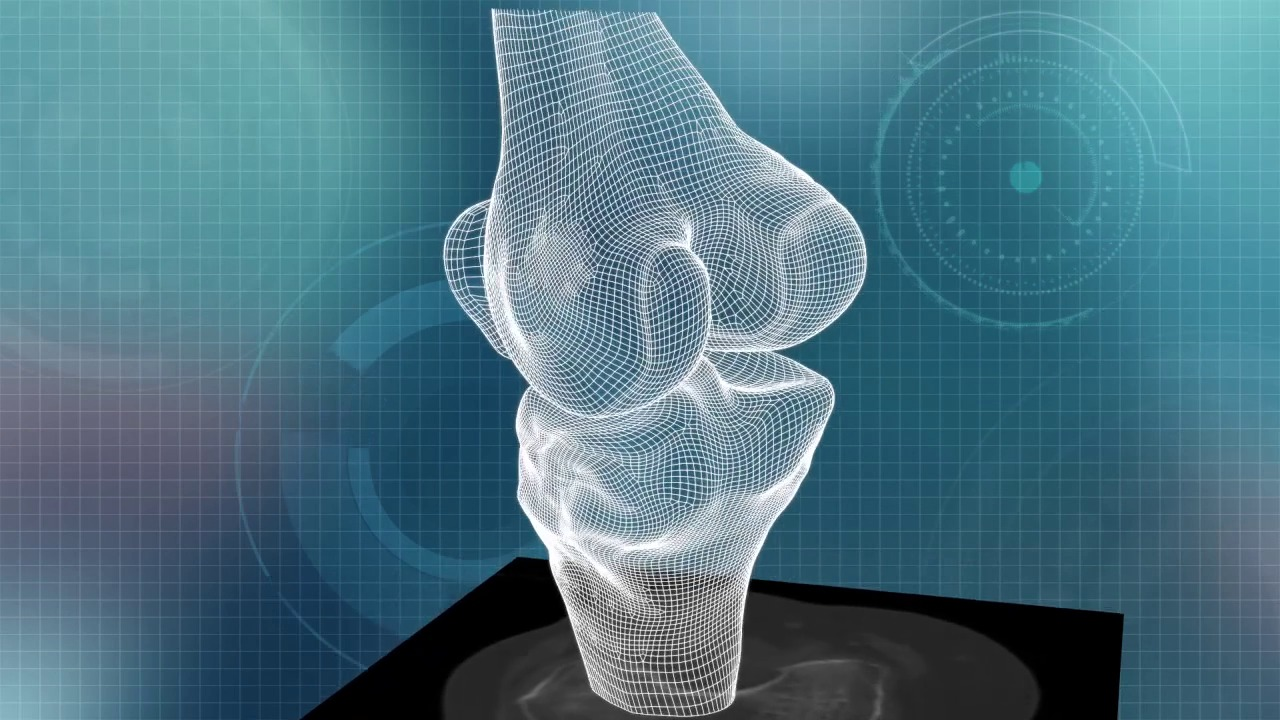 ConforMIS iFit Image-to-Implant Technology Video