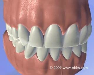 Teeth Whitening Chalfont Pa Bleaching