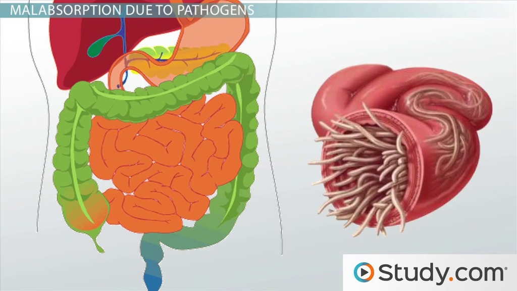 malabsorption in the gi tract - video & lesson transcript   study, Skeleton