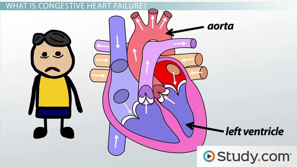 Right-Sided Heart Failure Symptoms Clip Art