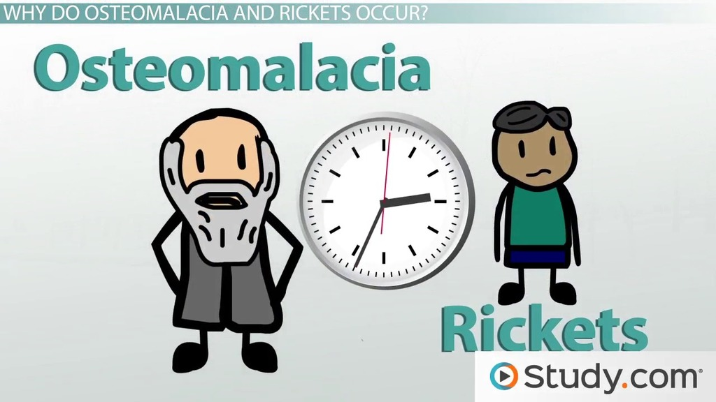 osteomalacia and rickets: causes and symptoms - video & lesson, Skeleton