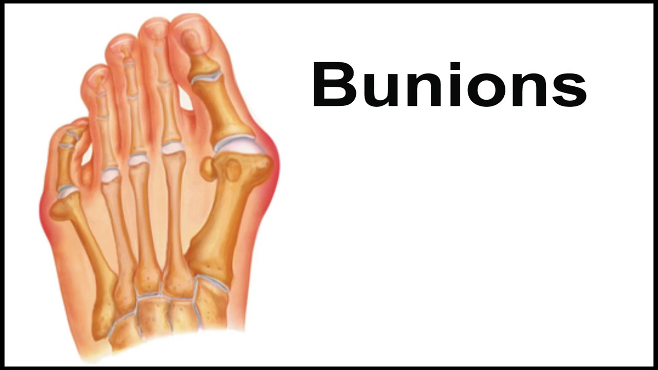Bunions - Kingwood, TX Foot Doctor