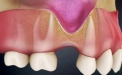 Why You Can't Place A Dental Implant