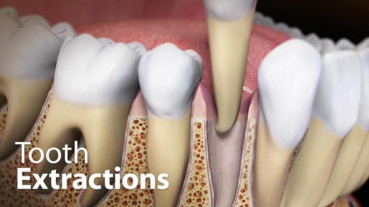 tooth extractions lange orthodontics milford ohio