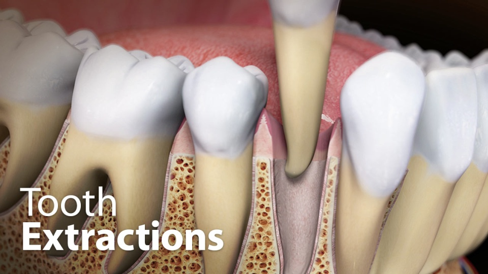 Tooth Extractions | Family and Children's Dentistry