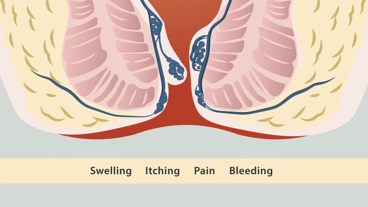 Hemorrhoid Treatment - Oakland County Hemorrhoid Treatment